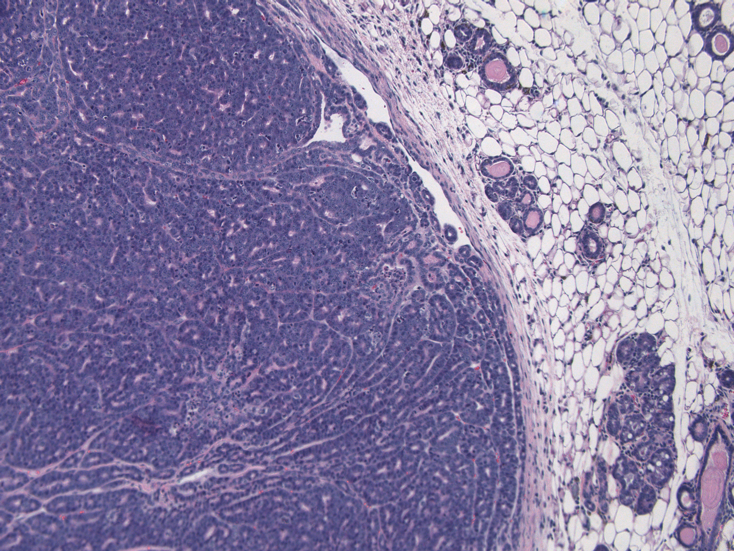 Boundary between tumor and normal
